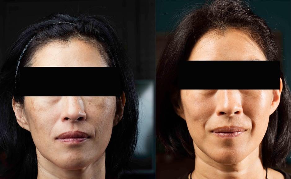 Millefiori Medical Skin Rejuvenation